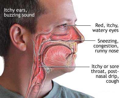 allergies,png